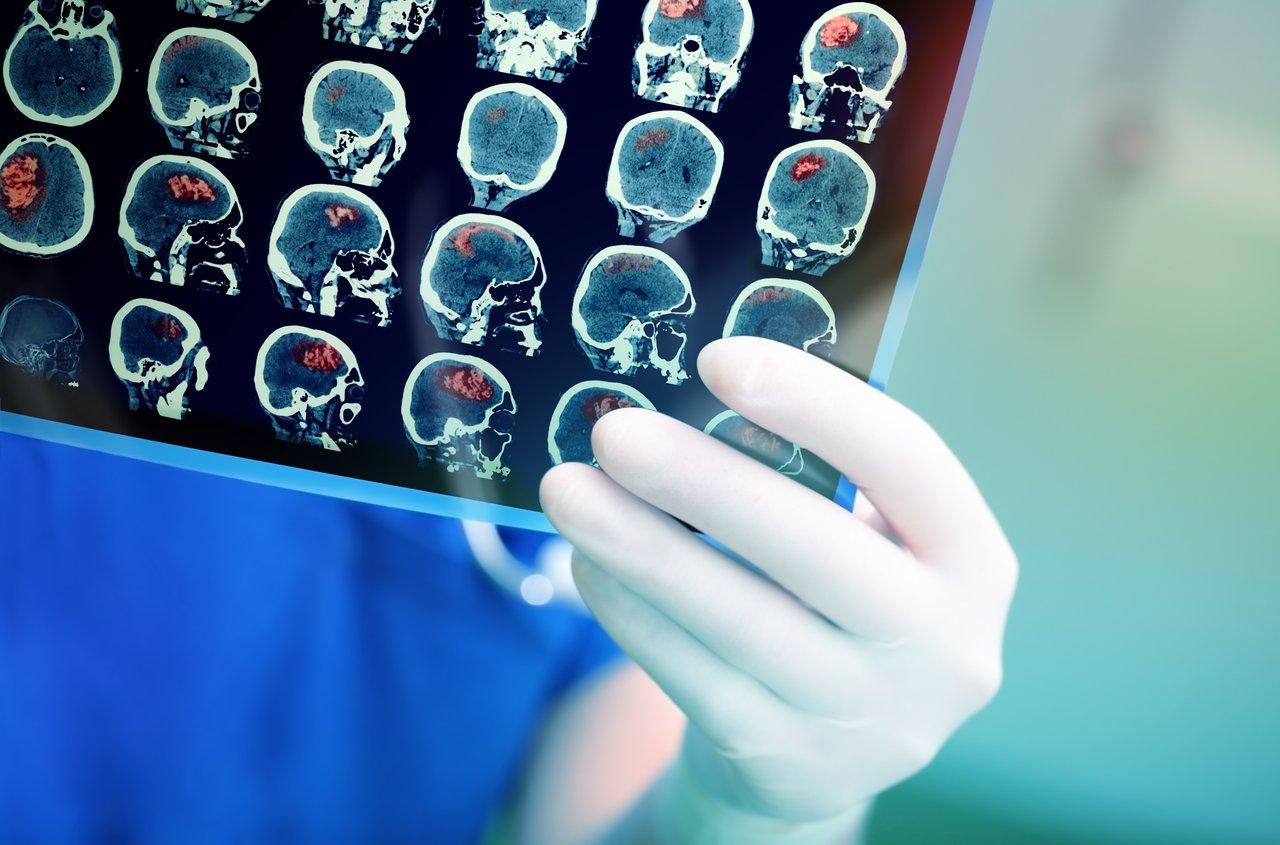 doctor examines mri brain scan